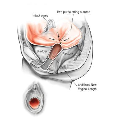 Clindesse vaginal
